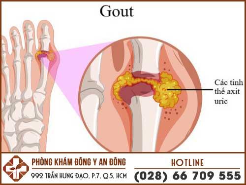 trieu chung benh gout