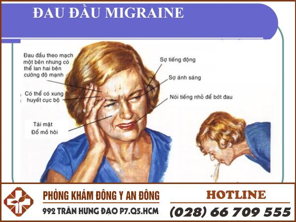 Benh dau dau migraine.