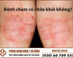 benh cham co chua khoi khong
