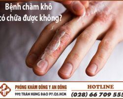 benh cham kho co chua duoc khong